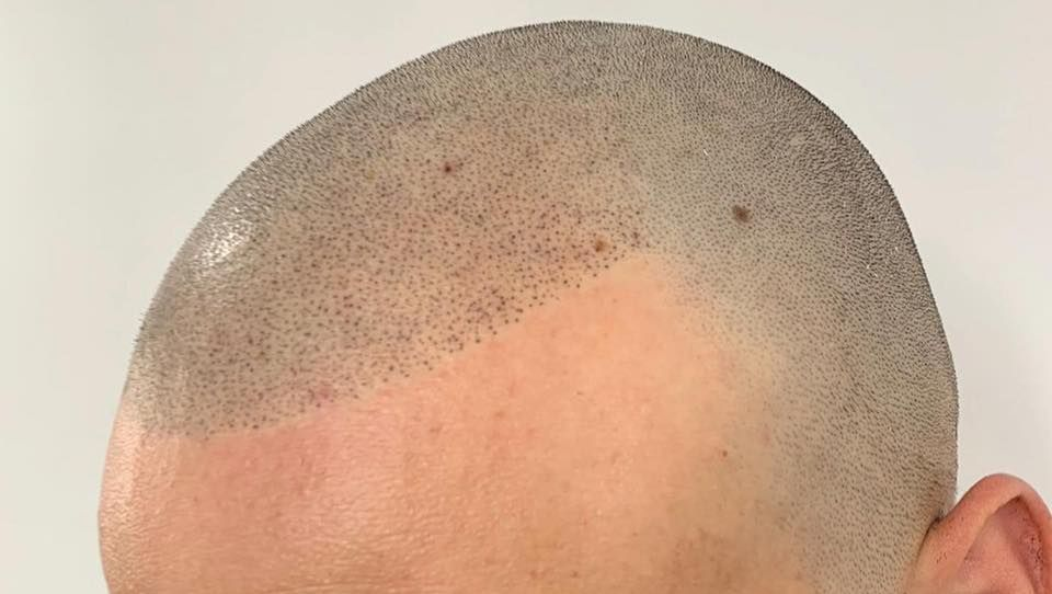 Scalp Micro-Pigmentation